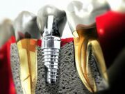 dental-implant-klass.jpg